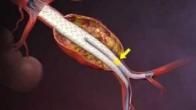 NEJM Procedure: Deployment of an Endovascular Graft in an Abdominal Aortic Aneurysm