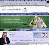 Anterior Hip Replacement Center