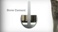 Cormet Hip Resurfacing