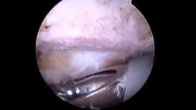 Shoulder Arthroscopy, Removal of Bone Spur (Subacromial Decompression)