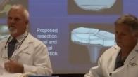 How is a custom knee implant created?