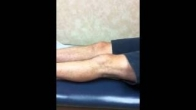 Patellar Tendon Repair Post Op