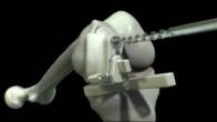 iUni Surgical Technique Animation