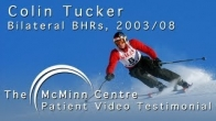 Alpine Skiing with a Birmingham Hip Resurfacing (BHR) - Professional Skier Colin Tucker