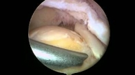 Acromioplasty by Dr. McLaughlin - Part 1