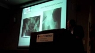 Total Joint Replacement Seminar Presented by Dr Shahan Yacoubian