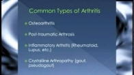 Part 1 - What is Osteoarthritis? - Surgical Treatment of Knee Pain