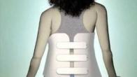 Adolescent Scoliosis