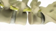 Transforaminal Lumbar Interbody Fusion (TLIF) Surgery