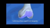 Conformis iFit - Personalized Knee Replacement