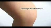 MAKOplasty® Knee: Product Showcase - Customized Fit - Knee