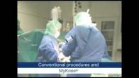 MyKnee Custom Knee Replacement
