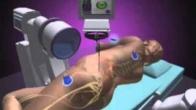 NuVasive XLIF - Minimally Invasive Spine Surgery - Dr. Bashir