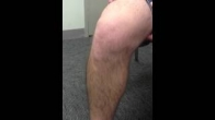 Deficient ACL, Anterolateral Instability