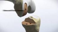 Knee Animation: Bone-Tissue Sparing
