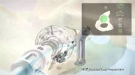 MAKOplasty Hip Animation