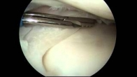 How we perform a partial meniscectomy