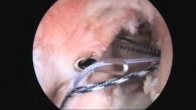 Surgical example of Bankart repair and Remplissage