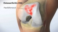 2012 | MAKOplasty Animation | Partial Knee Replacement