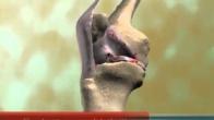 Knee Anatomy and Arthritis, Nathaniel Stewart MD