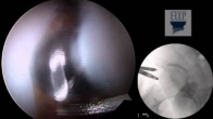 Hip Arthroscopy: Osteoplasty for CAM Lesion Decompression