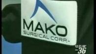 Makoplasty partial knee resurfacing for knee osteoarthritis