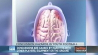 Concussion hazards in youth football