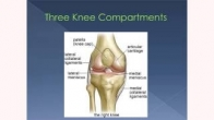 Options for Type of Knee Replacement