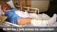 Mr MM Day 1 post anterior hip replacement