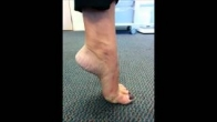 Movements After Minimally Invasive Bunion Correction