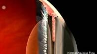 Glaucoma narrow angle