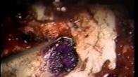 Cervical Disc Disease & Keyhole Foraminotomy