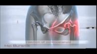 Hip Bursitis Treatment in South Florida