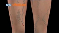 Varicose veins: an animation