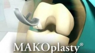 MAKOplasty partial knee resurfacing