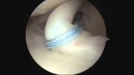 Loop-n-Tack Proximal Biceps Tenodesis