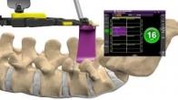 MAS PLIF Patient Education Animation US