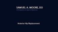 Samuel A. Moore DO - Total Hip