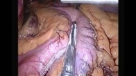 Gastric Sleeve as performed by Mr O Boyle