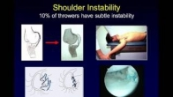 Raleigh Orthopaedic Clinic Surgeon Discusses Shoulder and Elbow Injuries in Throwing Athletes