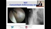 Dysplasia: Arthroscopic Indications, Dr. Benjamin Domb, Chicago Hip Symposium (2013)