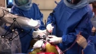 Total Hip Replacement Using MAKO Robotic Assistance
