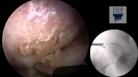 Hip Arthroscopy: Treatment for Cam and Pincer Type Femoroacetabular Impingement (FAI)