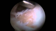 Hip Arthroscopy: Chondroplasty and Osteoplasty of CAM Lesion