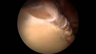 Hip Arthroscopy: Labral Reconstruction - Double Bundle Technique Using a Gracilis Tendon Autograft