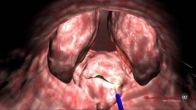 Quanta System - BPH - 3D Resection (median lobe) with Thulium Laser