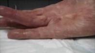 Needle Fasciotomy