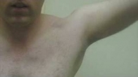 Multidirectional Instability in the Shoulder