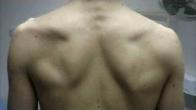 Supra-scapular Nerve Palsy