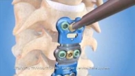 Atlantis Cervical Plate Animation